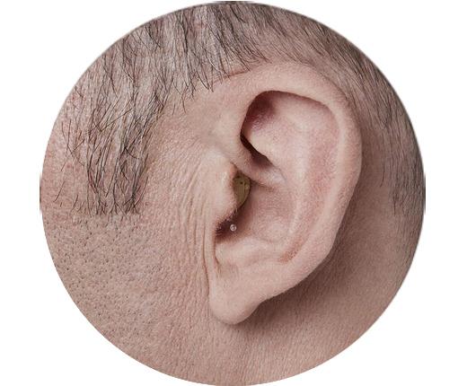 מכשיר שמיעה זעיר בתוך האוזן