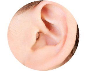 מכשיר זעיר בתוך האוזן